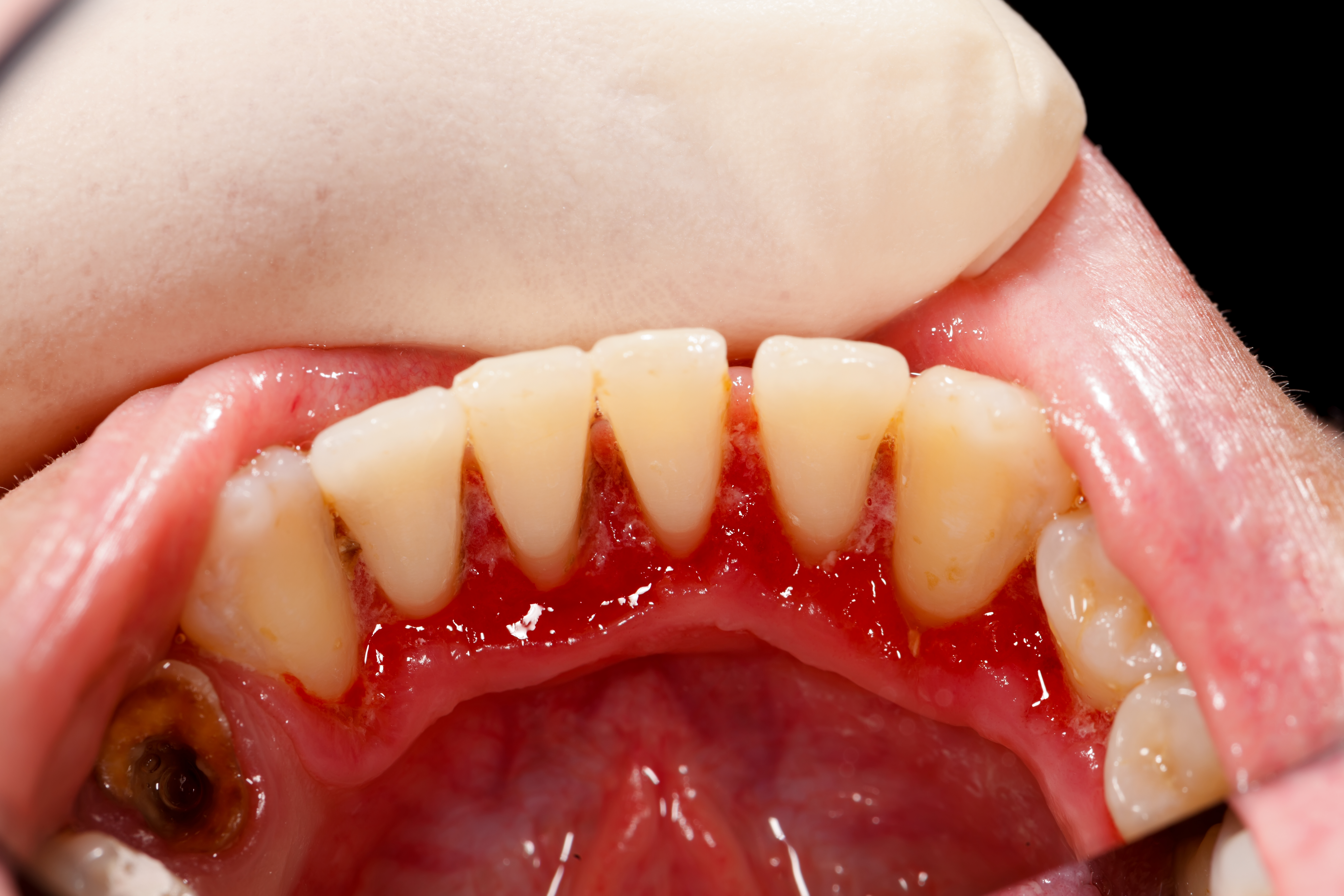 How to Reverse Gum Disease